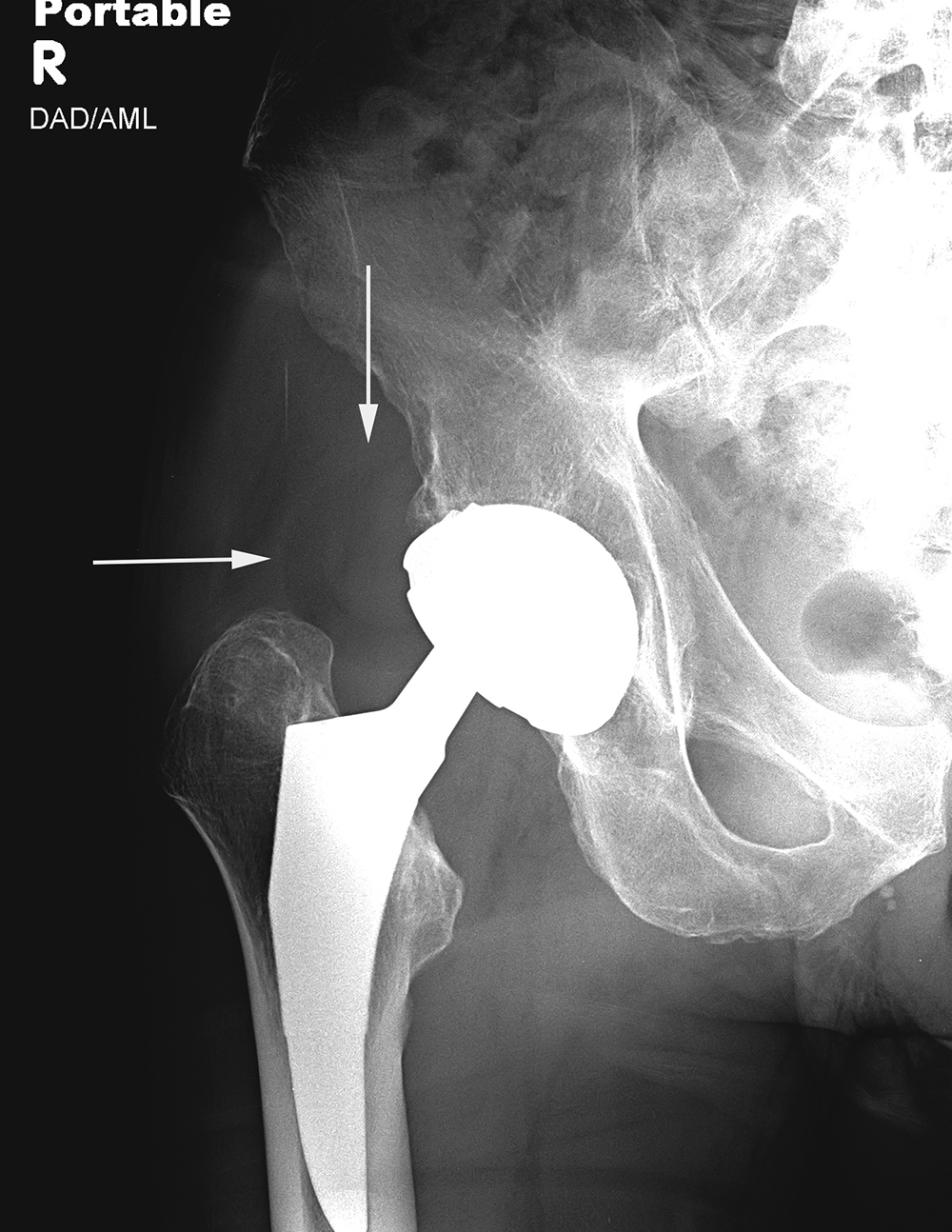 Joint Arthroplasty: a gallery