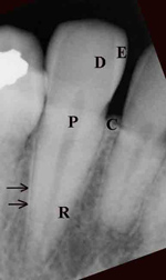 Tooth anatomy radiograph