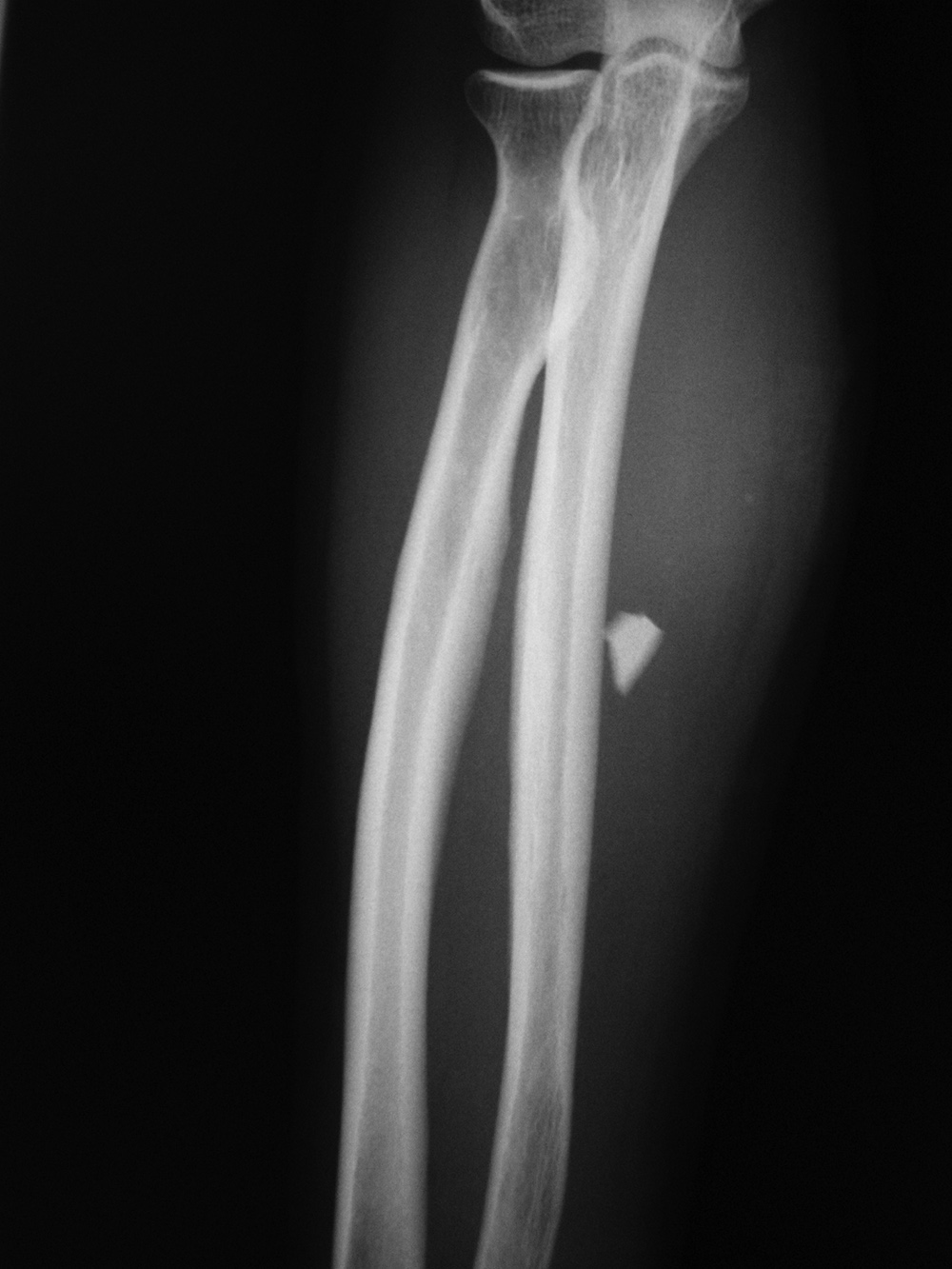 Glass Appearance On X Ray