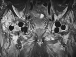Hip antibiotic beads MRI coronal STIR image