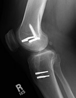 ACL intereference screw