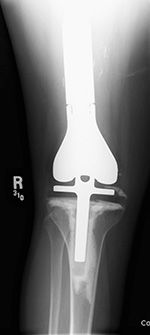 Lower limb salvage prosthesis