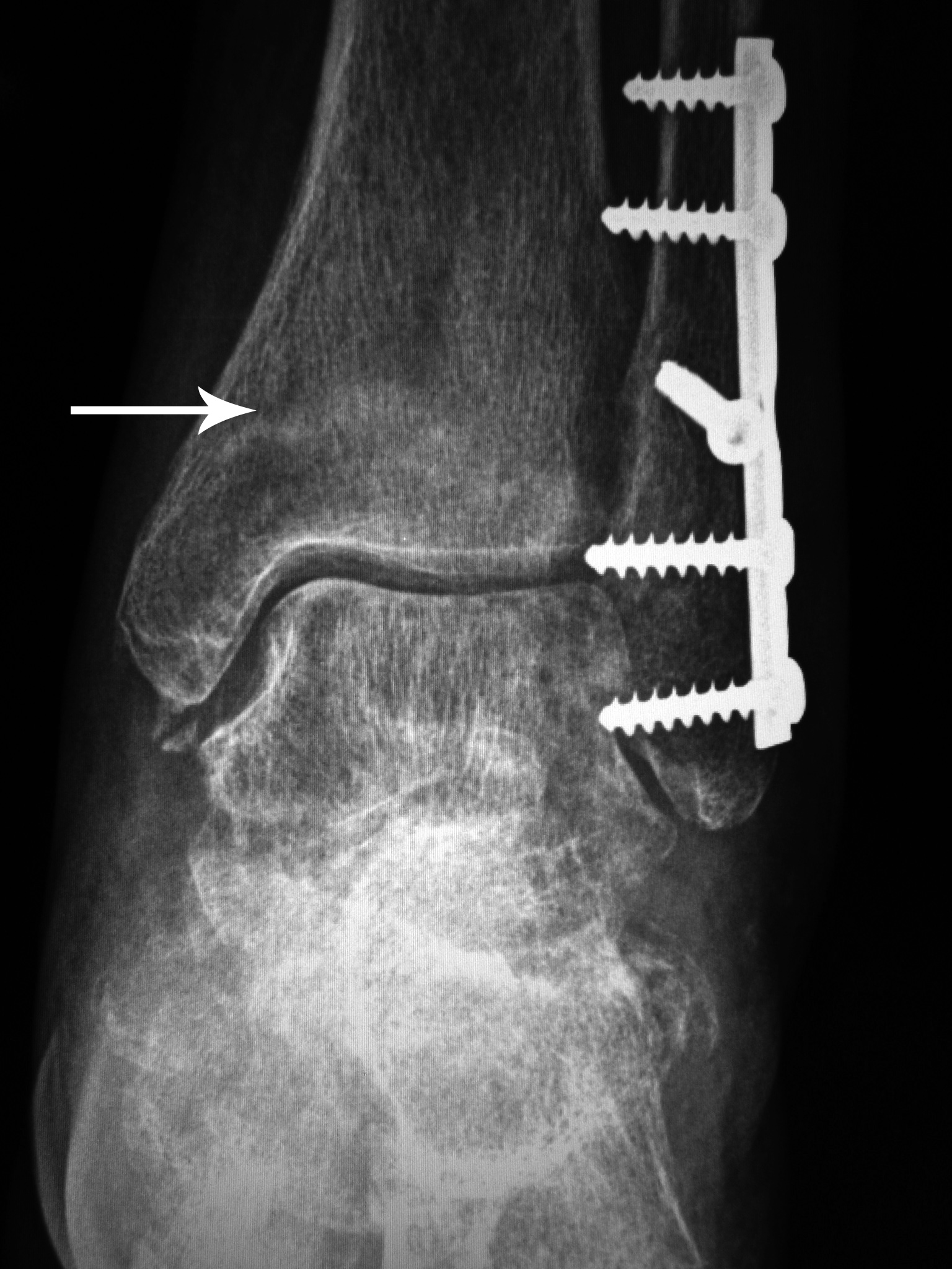 Complications of Fracture Fixation: a gallery