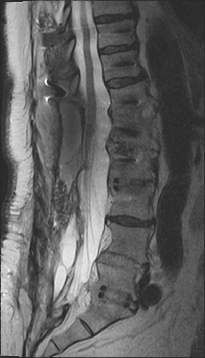 Complications of Neck and Spine Apparatus: a gallery
