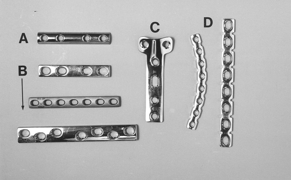 The anatomy of a fixation screw Cancellous and cortical bone screws ...