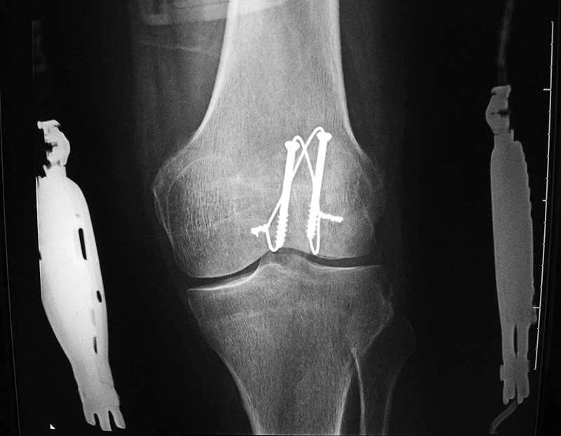 65 year-old woman with healing patellar fracture stabilized by two cancellous partially threaded bone screws and tension band wires. : tension band wiring - yogabreezes.com