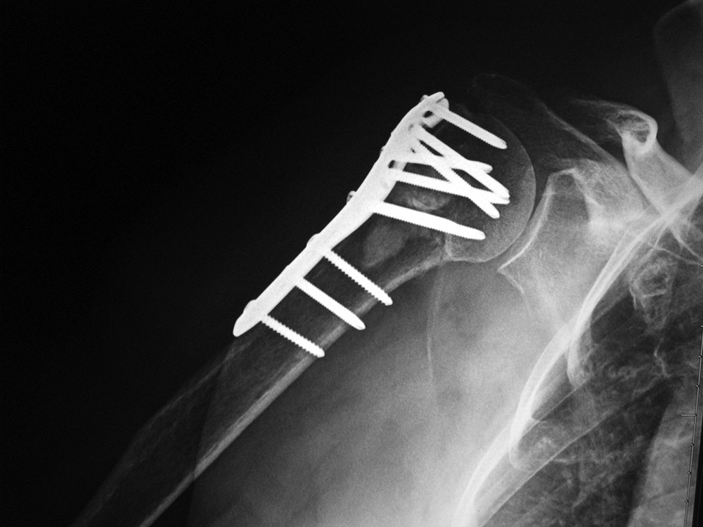 Medical Apparatus Imaging Guide Fracture Fixation