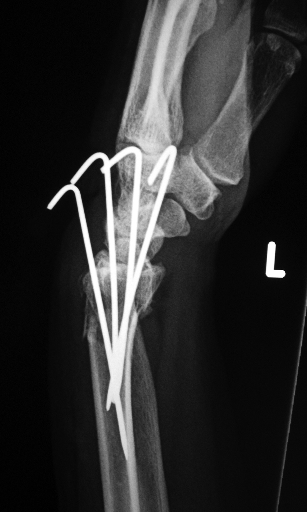 Fracture Fixation: a gallery