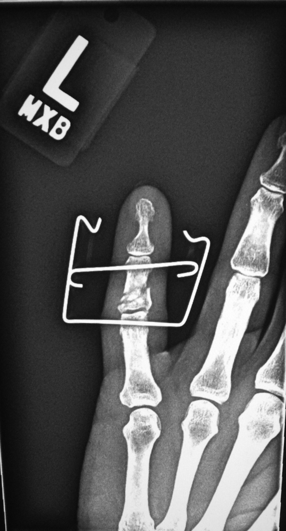 Fracture Fixation A Gallery