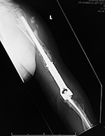 Revision total elbow arthroplasty