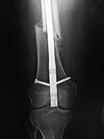 Retrograde femoral IM rod extrusion