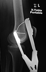 Femur fracture traction lateral view