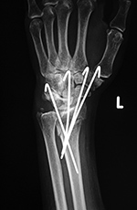 K-wires in distal radius
