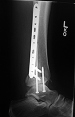 Left ankle dynamic compression plate and two syndesmotic screws