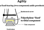 Agility ankle replacement