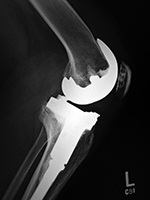 Left knee cruciate substituting revision total knee arthroplasty